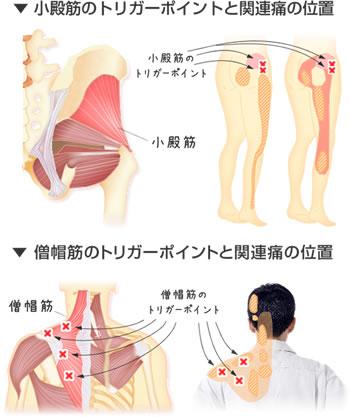 トリガーポイント療法の図